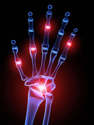 arthritis and chiropractic noblesville